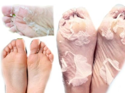 Removing dead skin from the feet with the use of shungite water