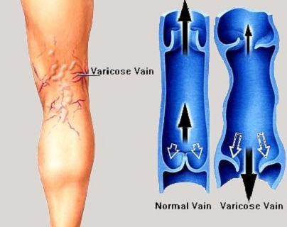 Varicose veins treatment with shungite water